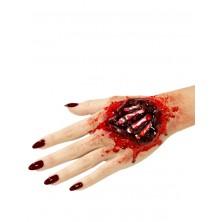 Zranění latexové, kosti na ruce